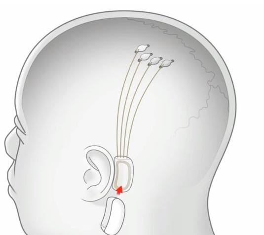 揭开了神经网络大脑探针的神秘面纱 旨在进行人体试验